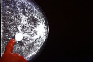 X-ray mammogram image of an affected breast with cancer. A finger is pointing at the white spot visible in the x-ray.