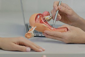 Gynecologist consulting patient using uterus anatomy model to prepare for IUD insertion