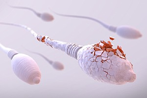 Damaged sperm cells. Barrier methods of contraception are not as effective in preventing pregnancy