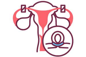 Tubal ligation a Permanent contraception and birth control